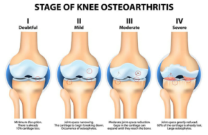 Knee Osteoarthritis at LiveActive