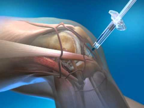 Steroid injections for knee pain dragon ag inqusition how to get british voices